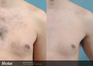 Before After Chest