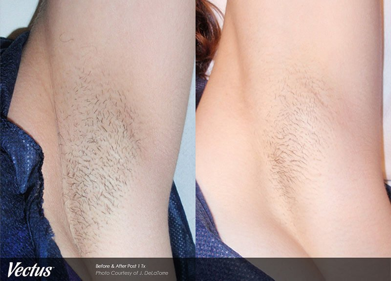 Before After Underarms