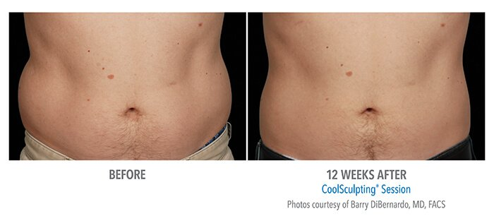 Before and After CoolSculpting® Men