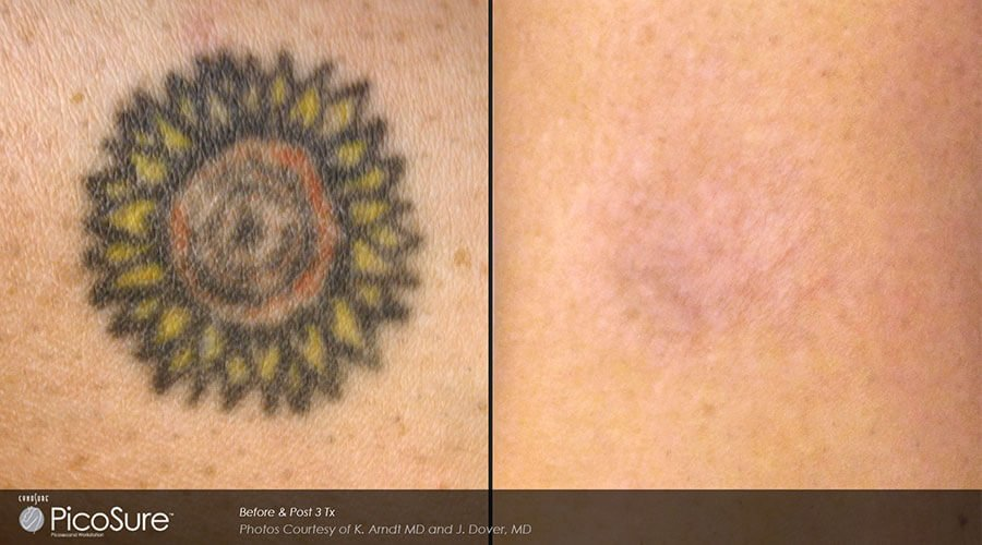 Before After Tattoo Removal by PicoSure®