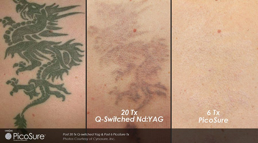 Before After PicoSure® Tattoo Removed