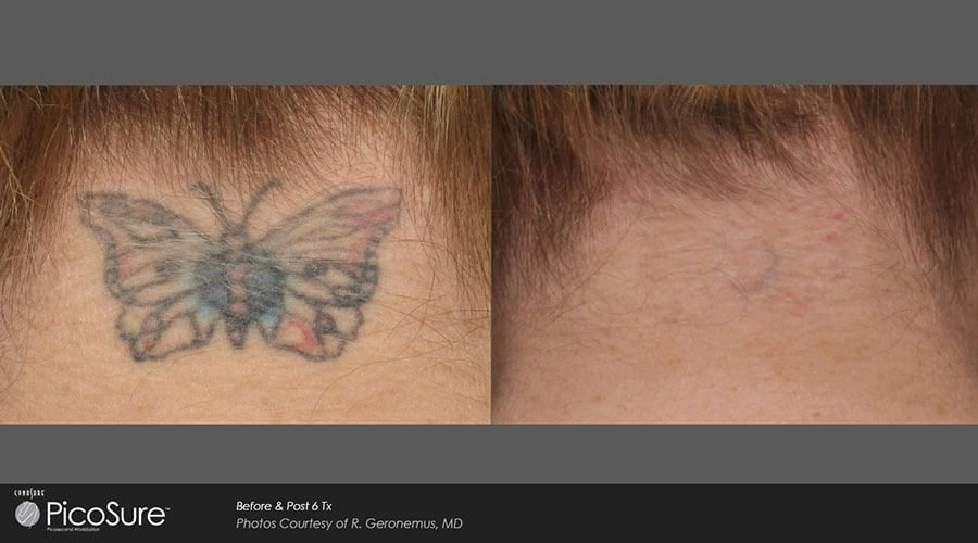 Before After PicoSure® Tattoo Removal Forehead