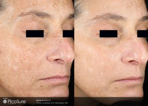 Before After Picosure Wrinkle DMcDaniel Post4Tx1