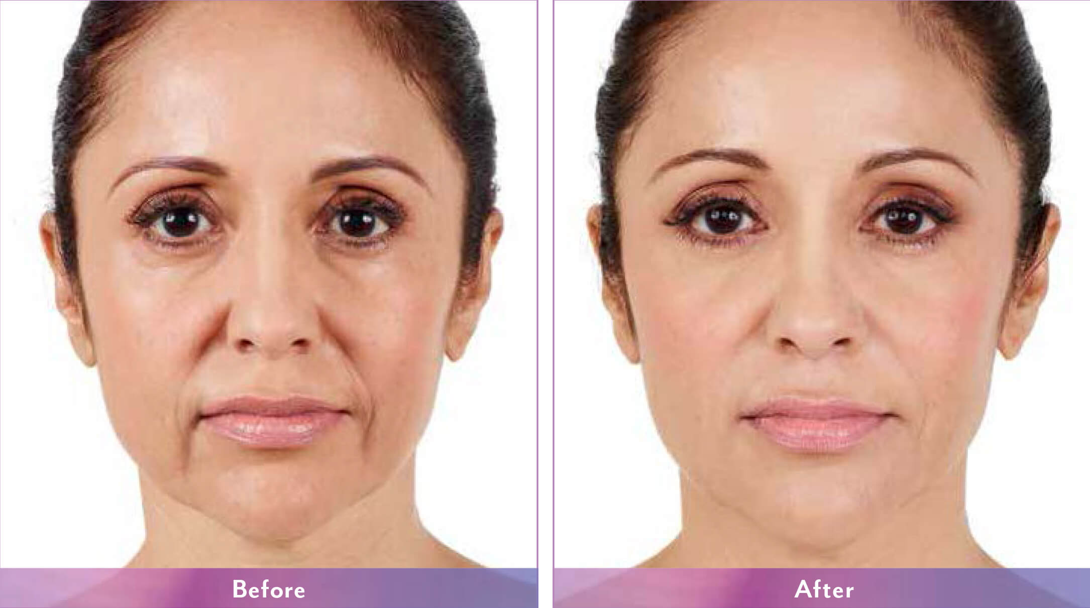 Before After Juvederm Treatment