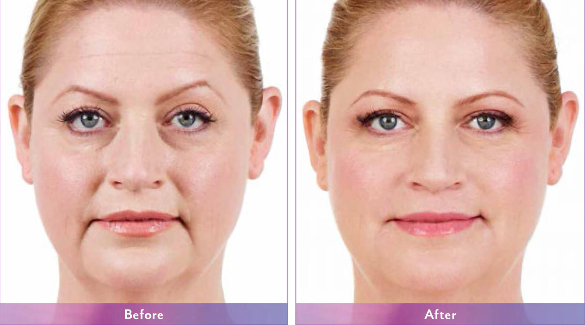 Before After Juvederm