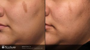Before After Picosure geronemus Post1Tx