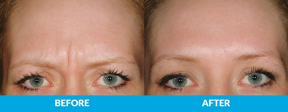 Before After Dysport Injectables