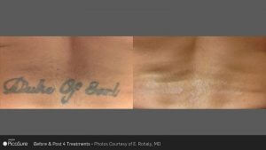 Before After PicoSure® Tattoo Removal
