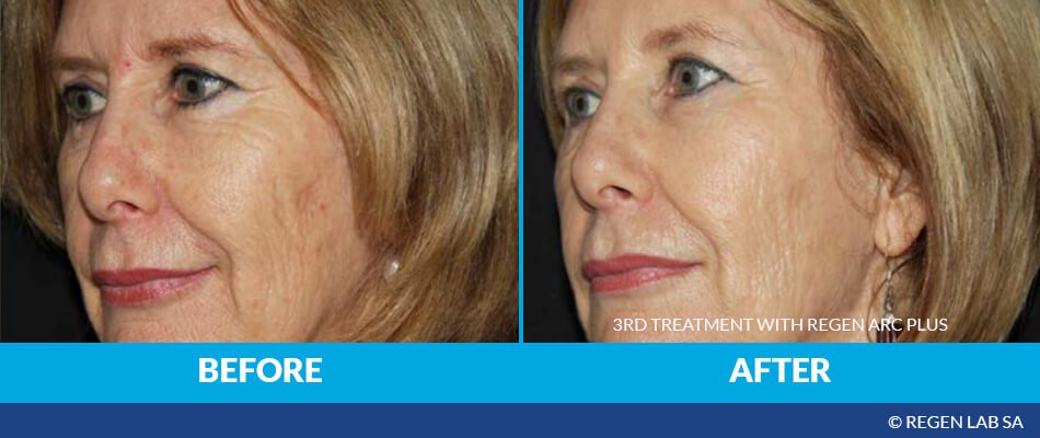 Before & After PRP Facelift