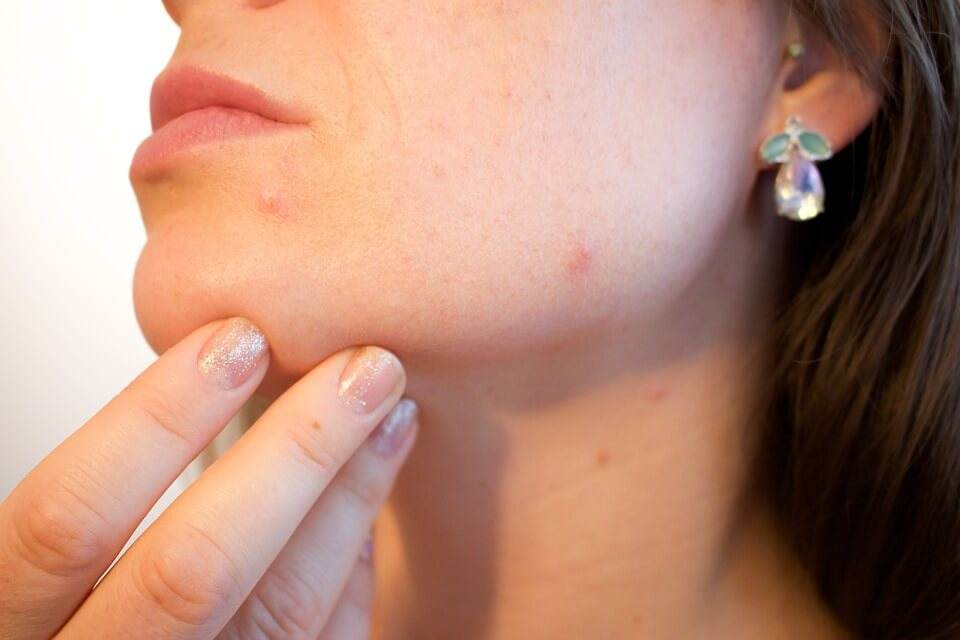 Laser rejuvenation treatment in Ottawa can help reduce the appearance of acne scars and other imperfections.