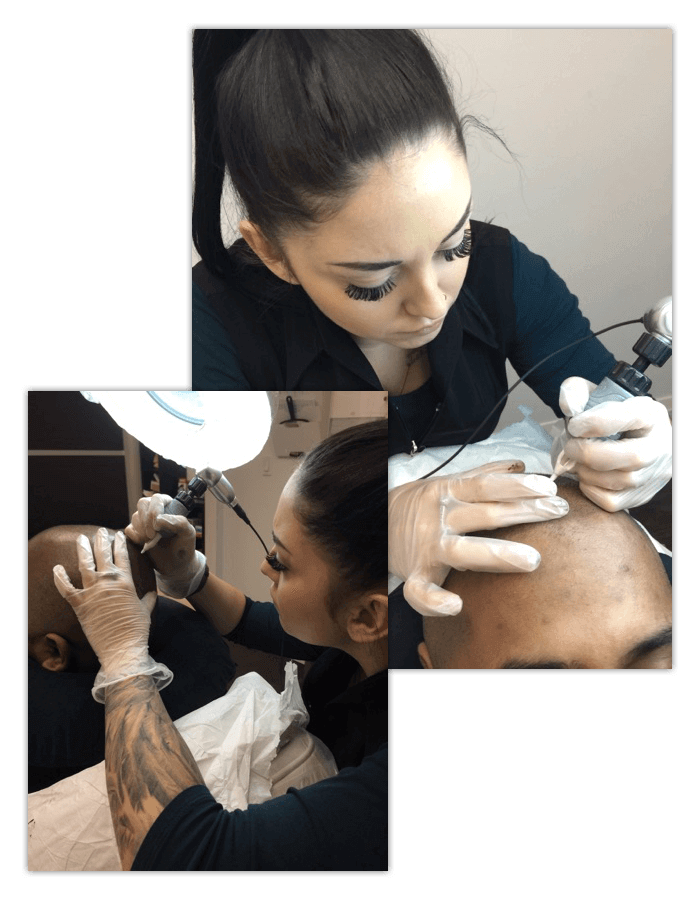 Scalp Micropigmentation Cara