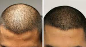 Before After Micropigmentation