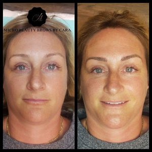 Before & After Microblading Face