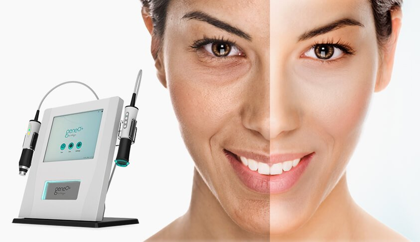 About OxyGeneo™ Facial Treatments