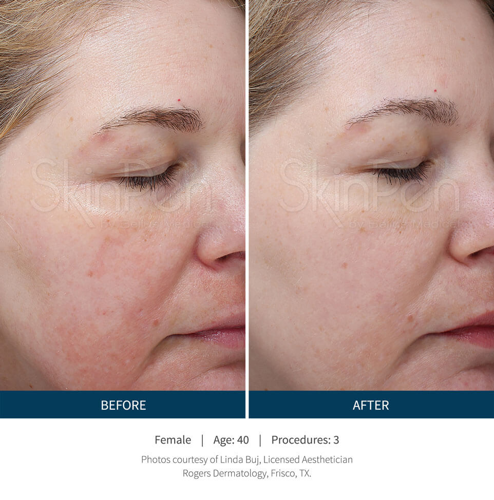 Female Before After Skinpen - Procedures 3