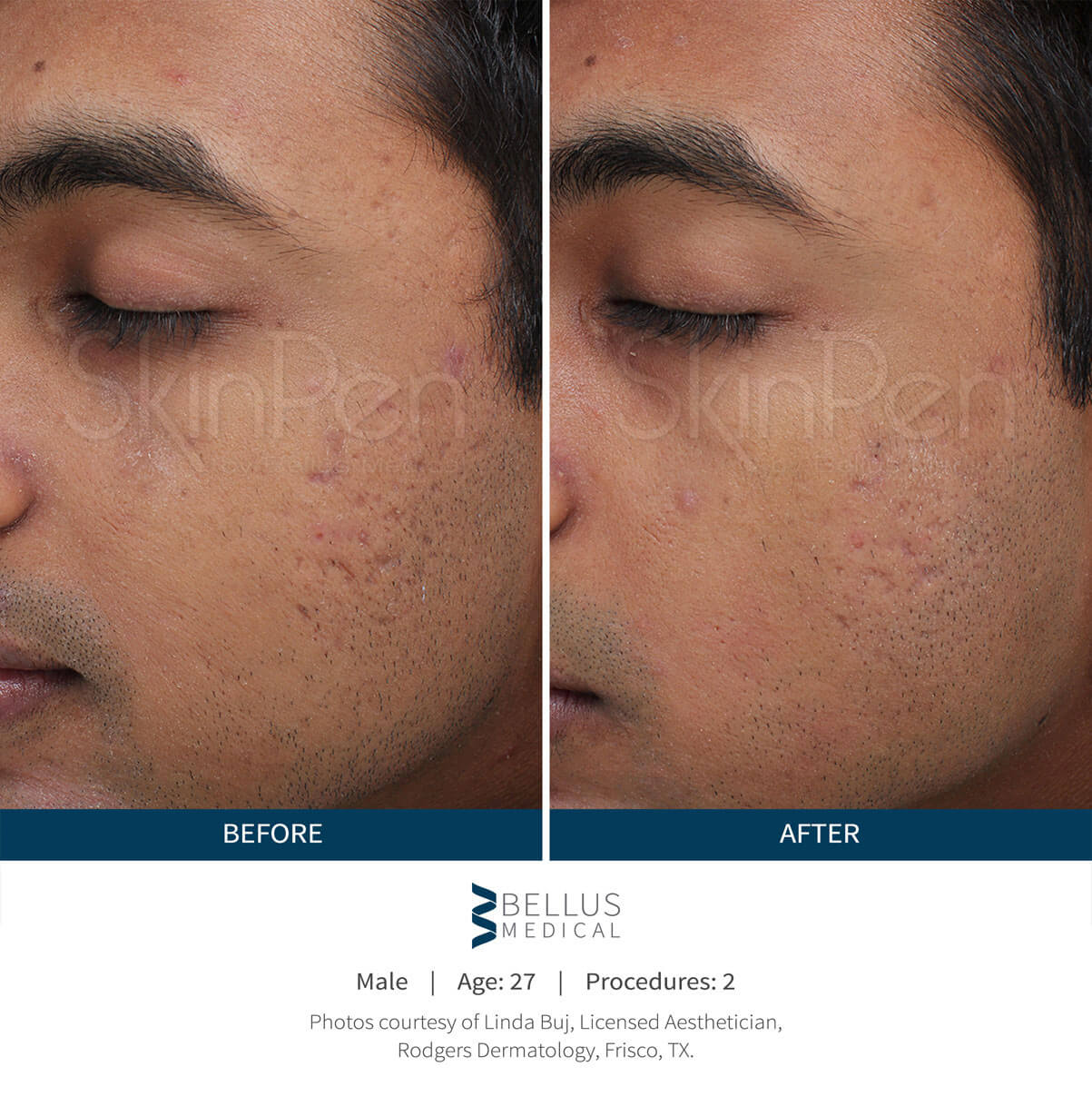 Male Before After Skinpen